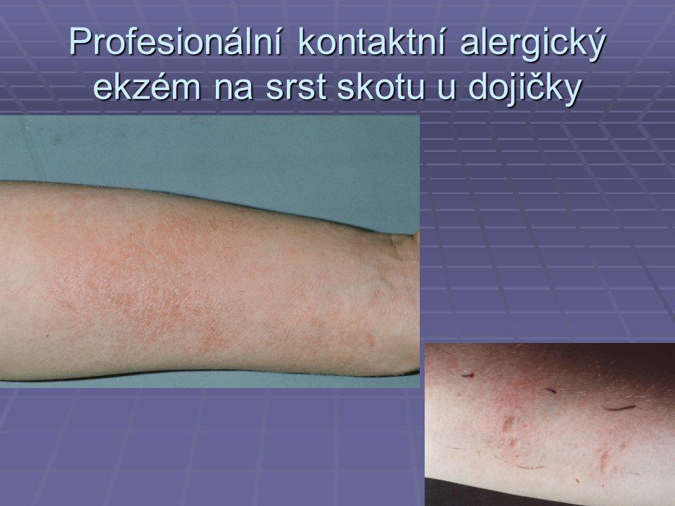 Profesionální kontaktní alergický ekzém na srst skotu u dojičky