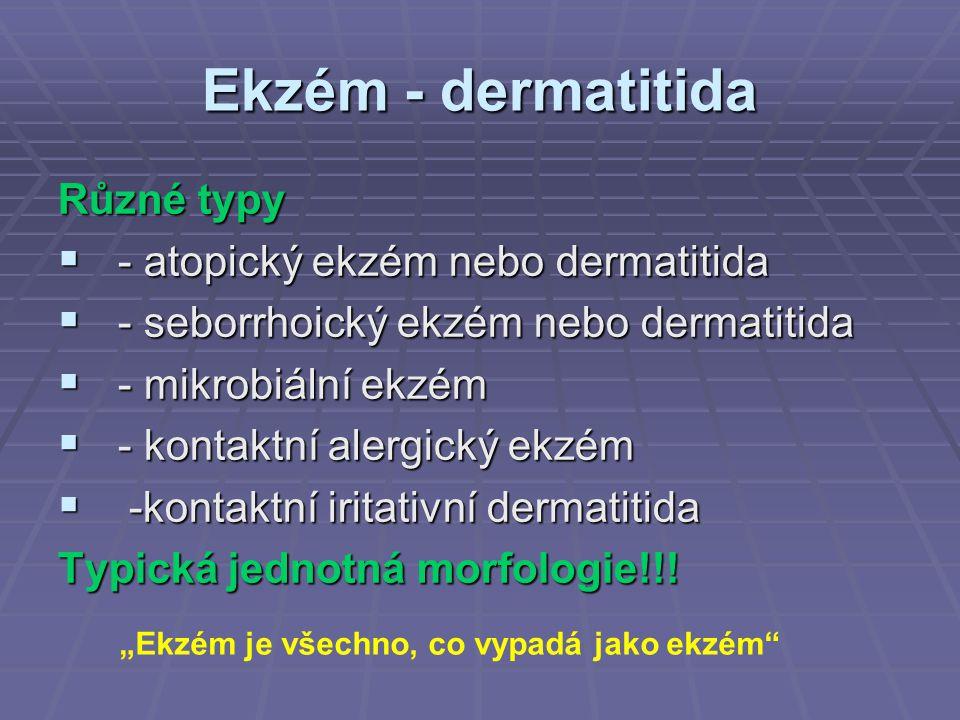 Ekzém - dermatitida Různé typy - atopický ekzém nebo dermatitida