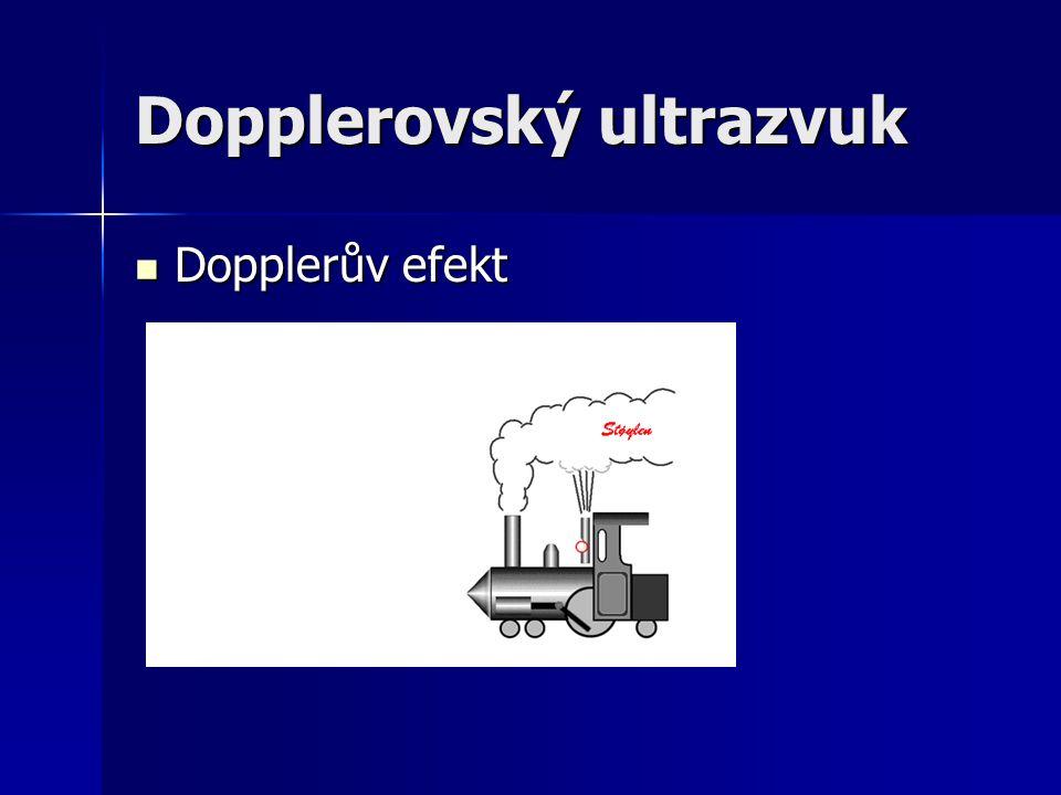 Dopplerovský ultrazvuk
