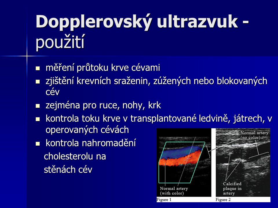 Dopplerovský ultrazvuk - použití