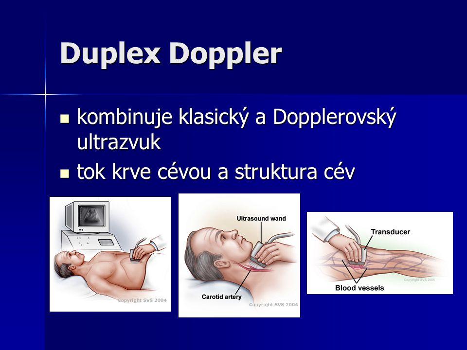 Duplex Doppler kombinuje klasický a Dopplerovský ultrazvuk