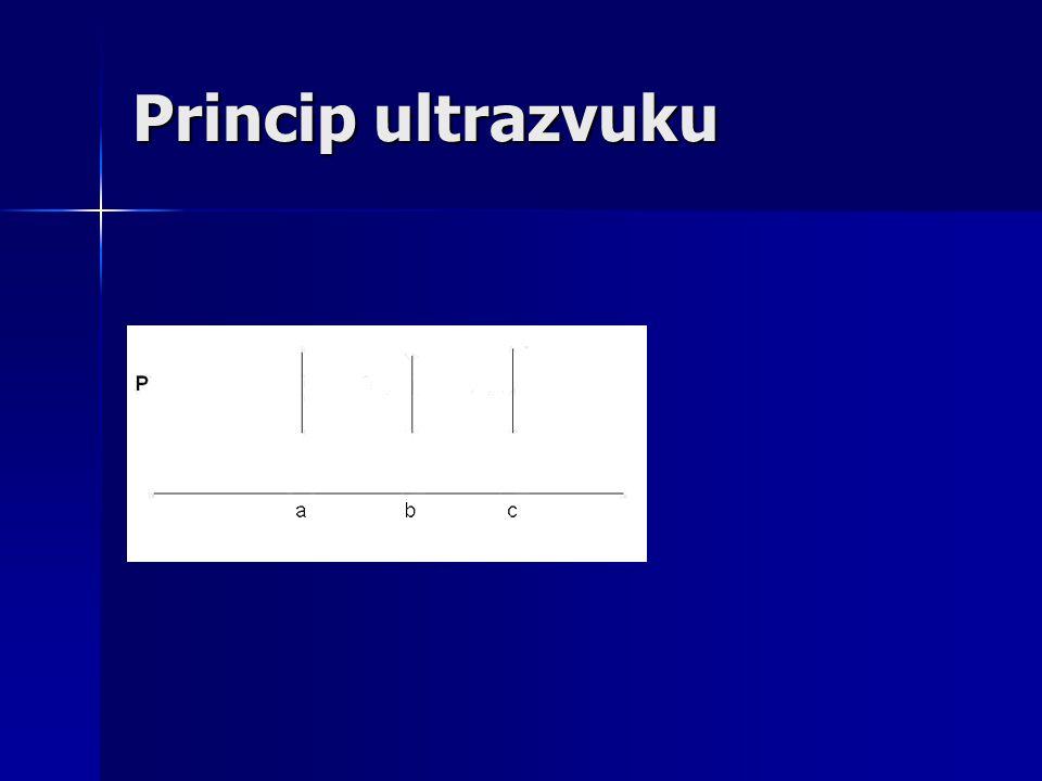 Princip ultrazvuku
