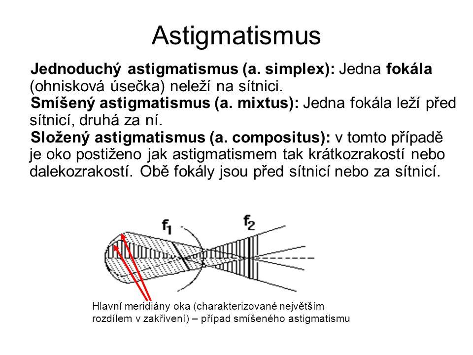 Astigmatismus Jednoduchý astigmatismus (a. simplex): Jedna fokála (ohnisková úsečka) neleží na sítnici.