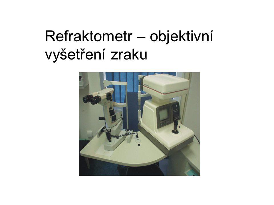 Refraktometr – objektivní vyšetření zraku