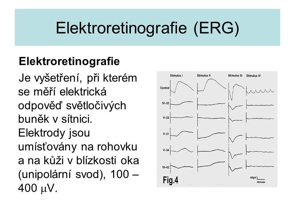 Elektroretinografie (ERG)