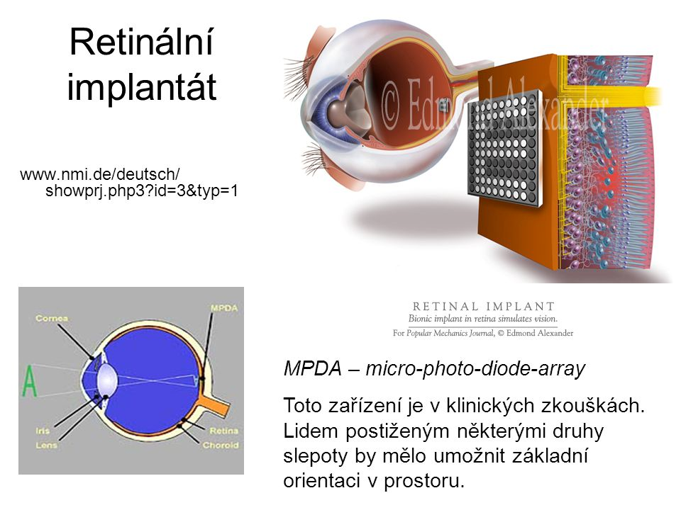 Retinální implantát MPDA – micro-photo-diode-array