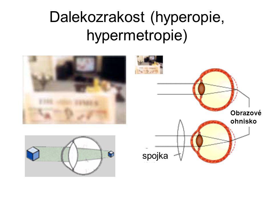Dalekozrakost (hyperopie, hypermetropie)
