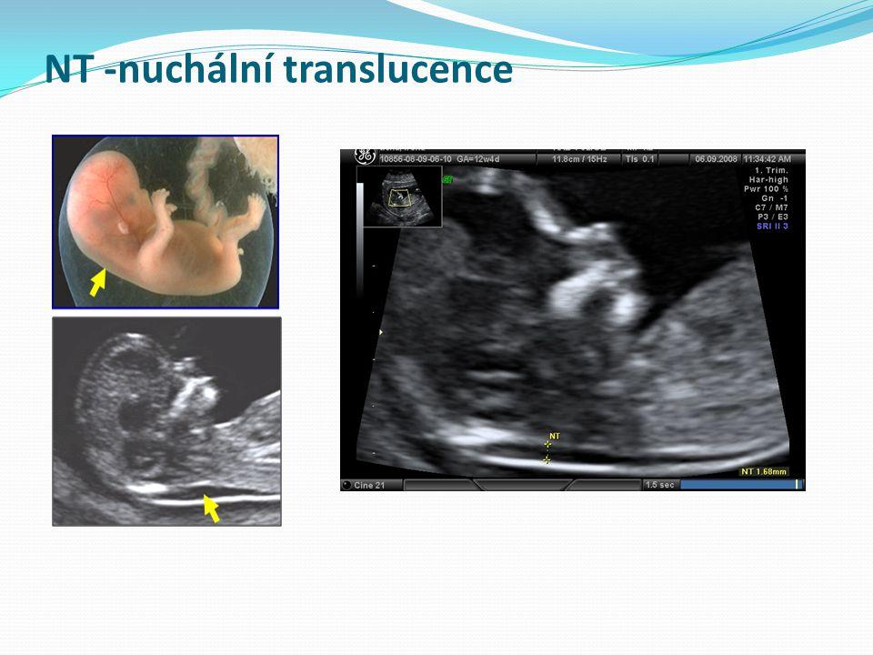 NT -nuchální translucence