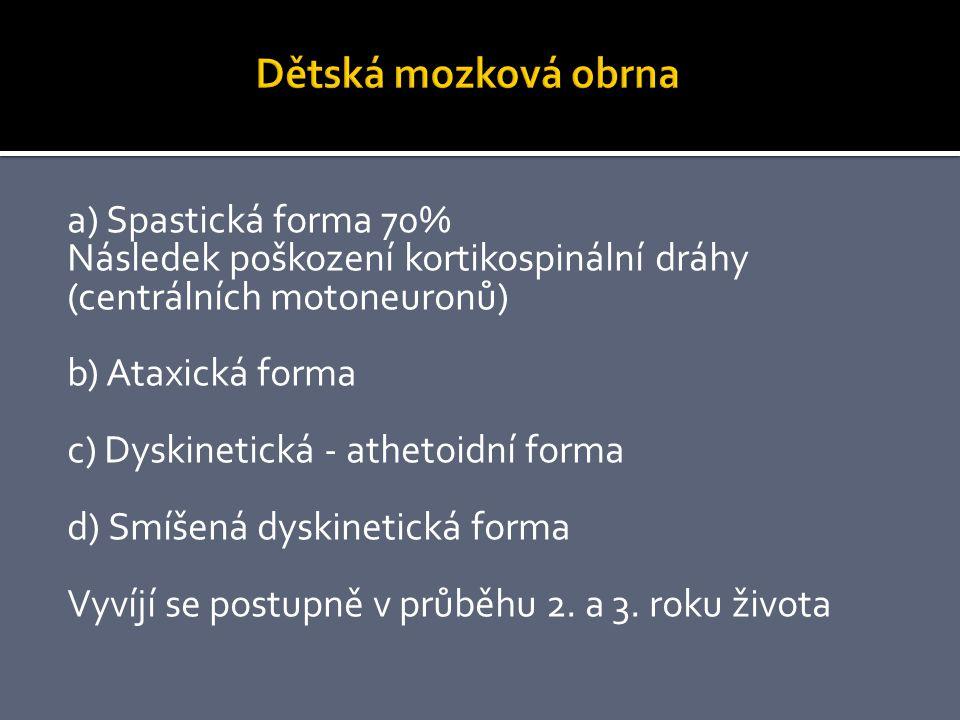 Dětská mozková obrna a) Spastická forma 70%