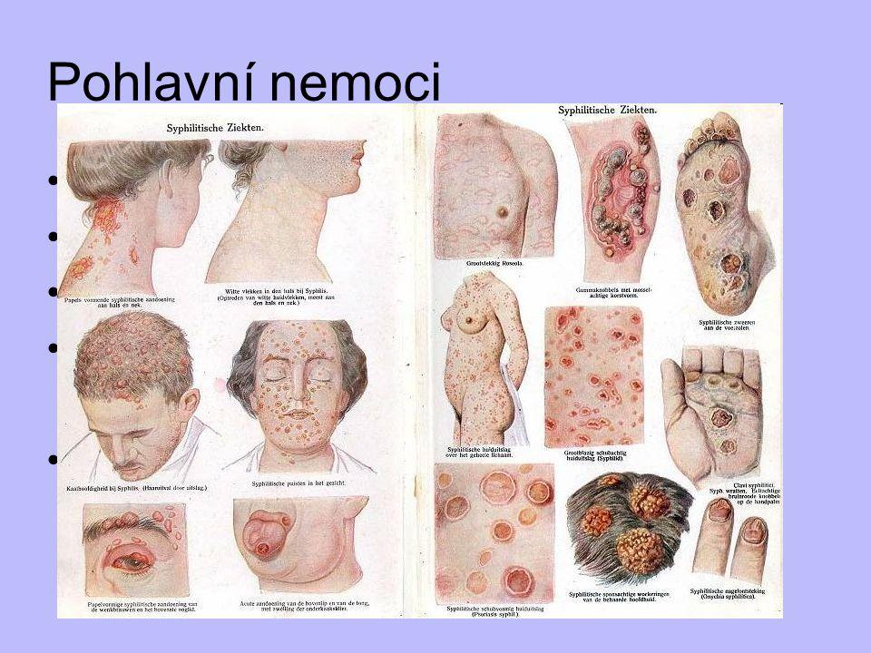 Pohlavní nemoci syfilis (kapavka, příjice) AIDS mykózy