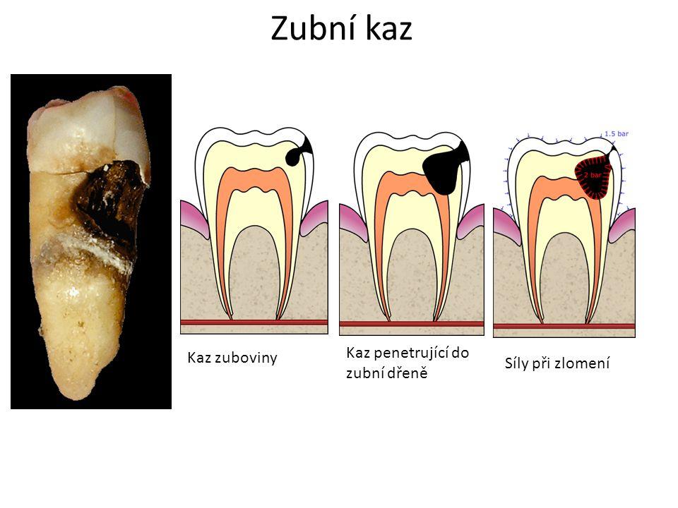Zubní kaz Kaz penetrující do zubní dřeně Kaz zuboviny Síly při zlomení