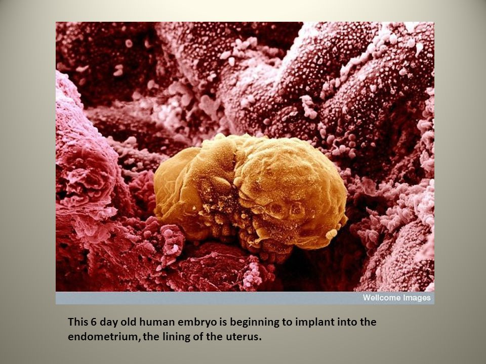 This 6 day old human embryo is beginning to implant into the endometrium, the lining of the uterus.