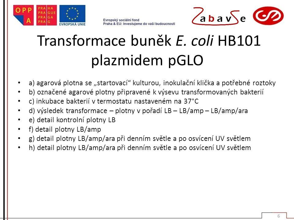 Transformace buněk E. coli HB101 plazmidem pGLO