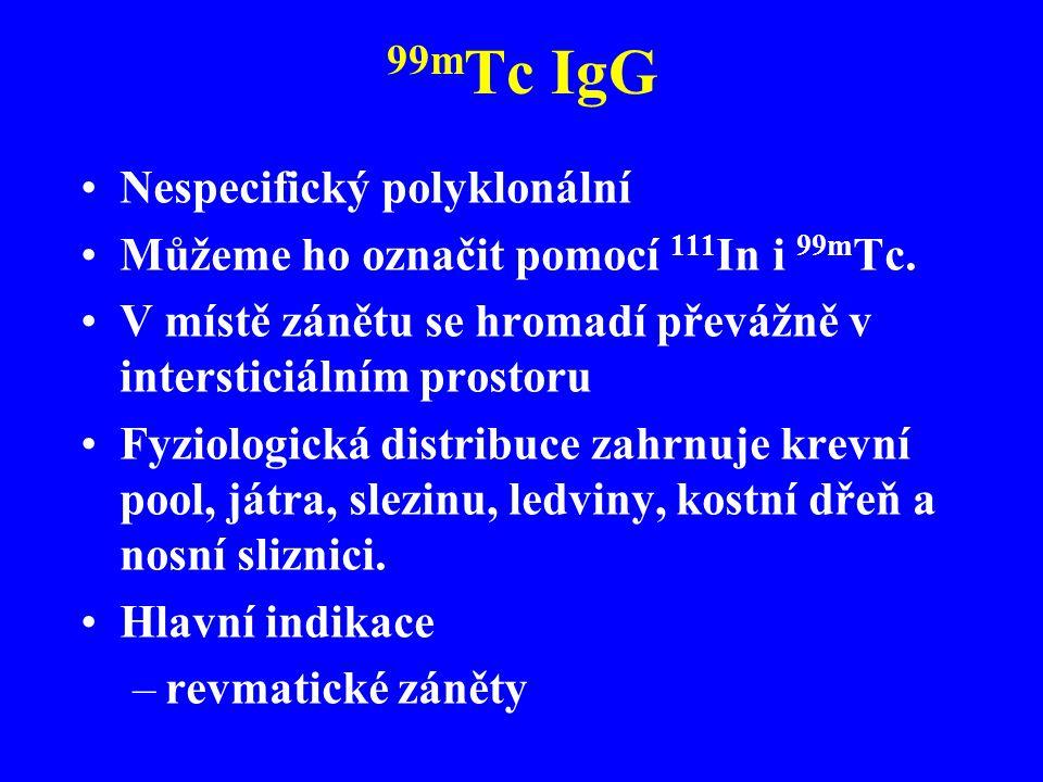 99mTc IgG Nespecifický polyklonální