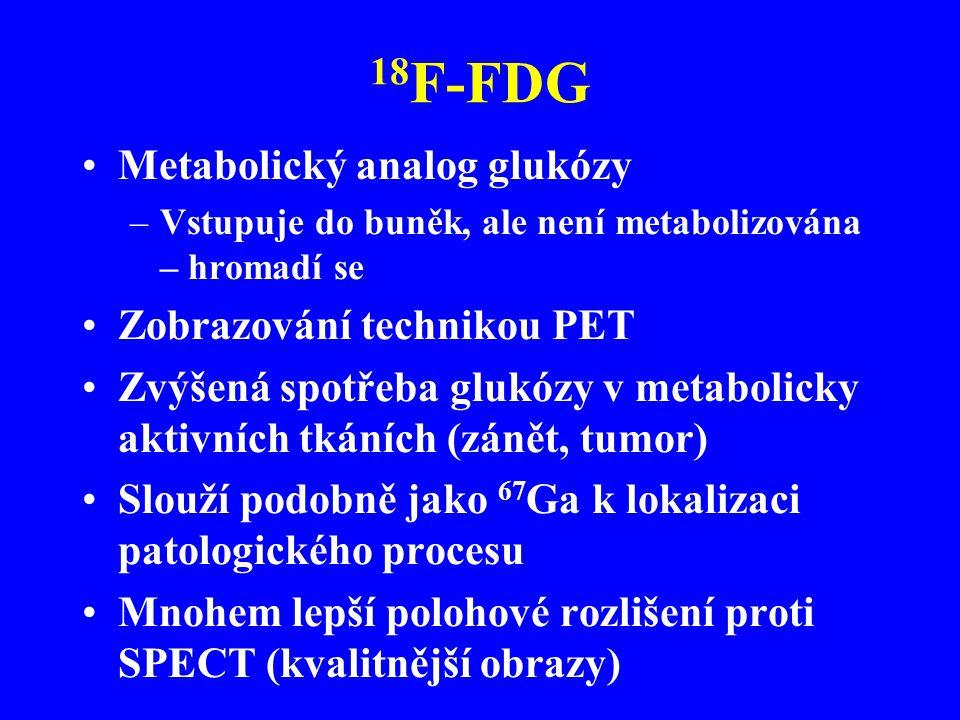 18F-FDG Metabolický analog glukózy Zobrazování technikou PET