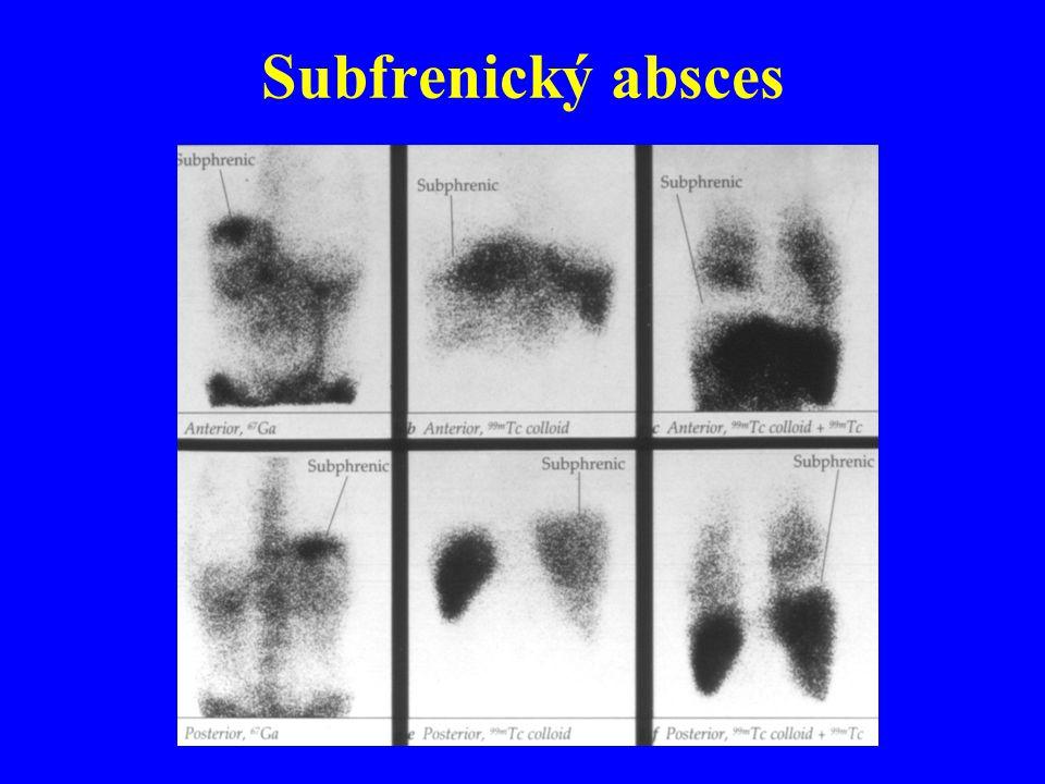 Subfrenický absces