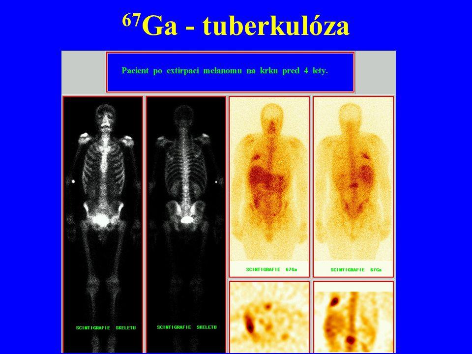 67Ga - tuberkulóza