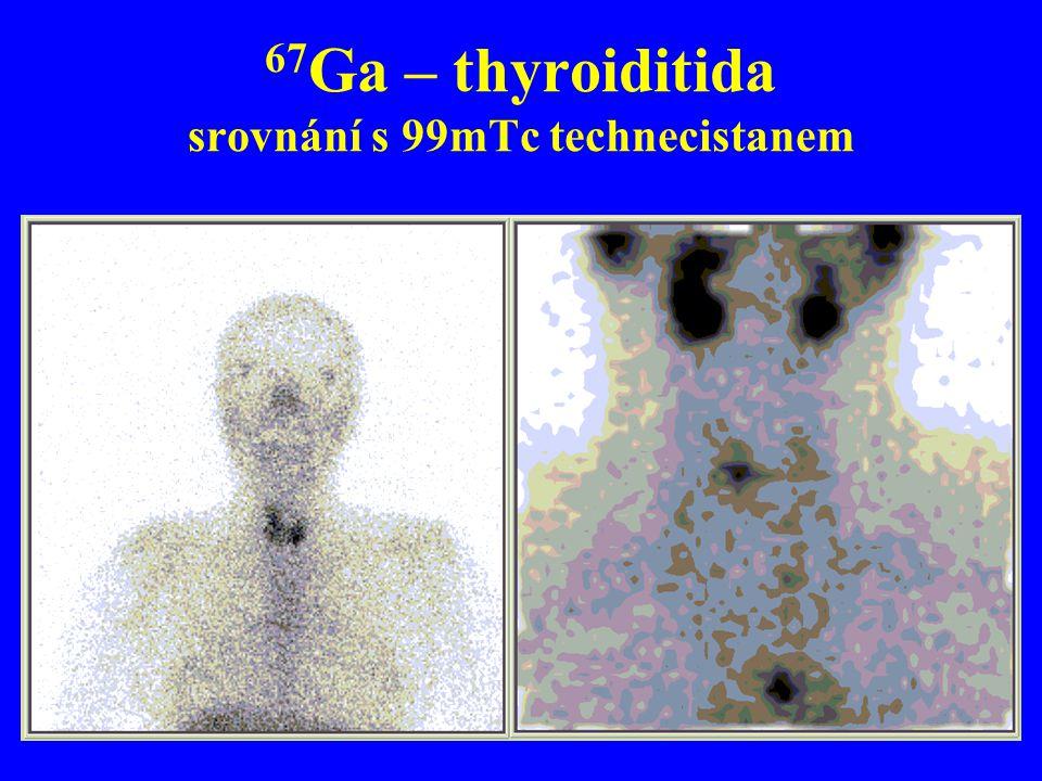 67Ga – thyroiditida srovnání s 99mTc technecistanem