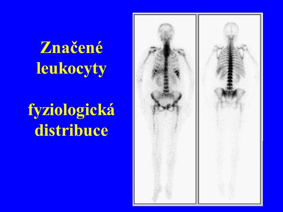 Značené leukocyty fyziologická distribuce