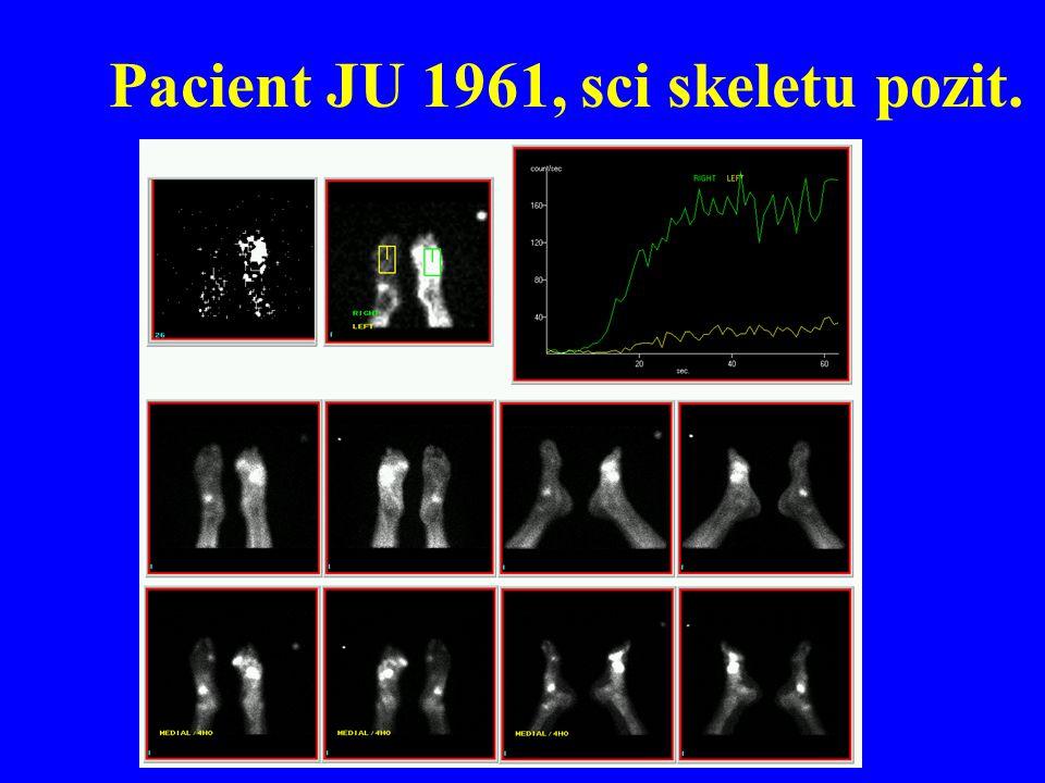 Pacient JU 1961, sci skeletu pozit.