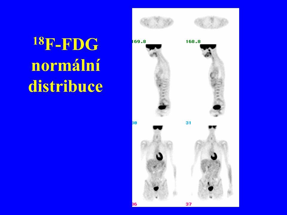 18F-FDG normální distribuce