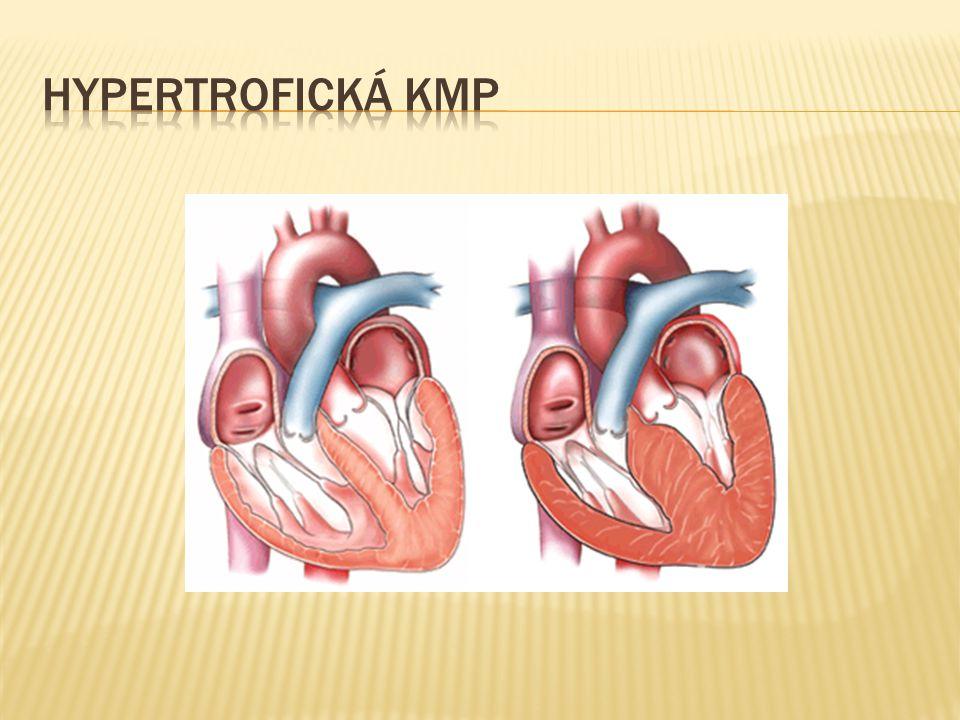 Hypertrofická KMP