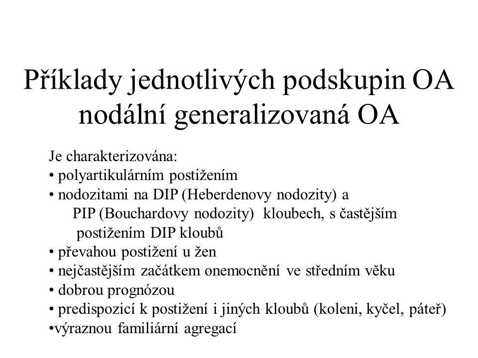 Příklady jednotlivých podskupin OA nodální generalizovaná OA