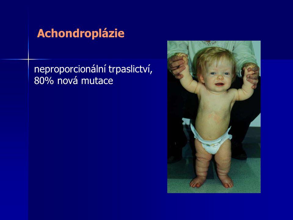 Achondroplázie neproporcionální trpaslictví, 80% nová mutace