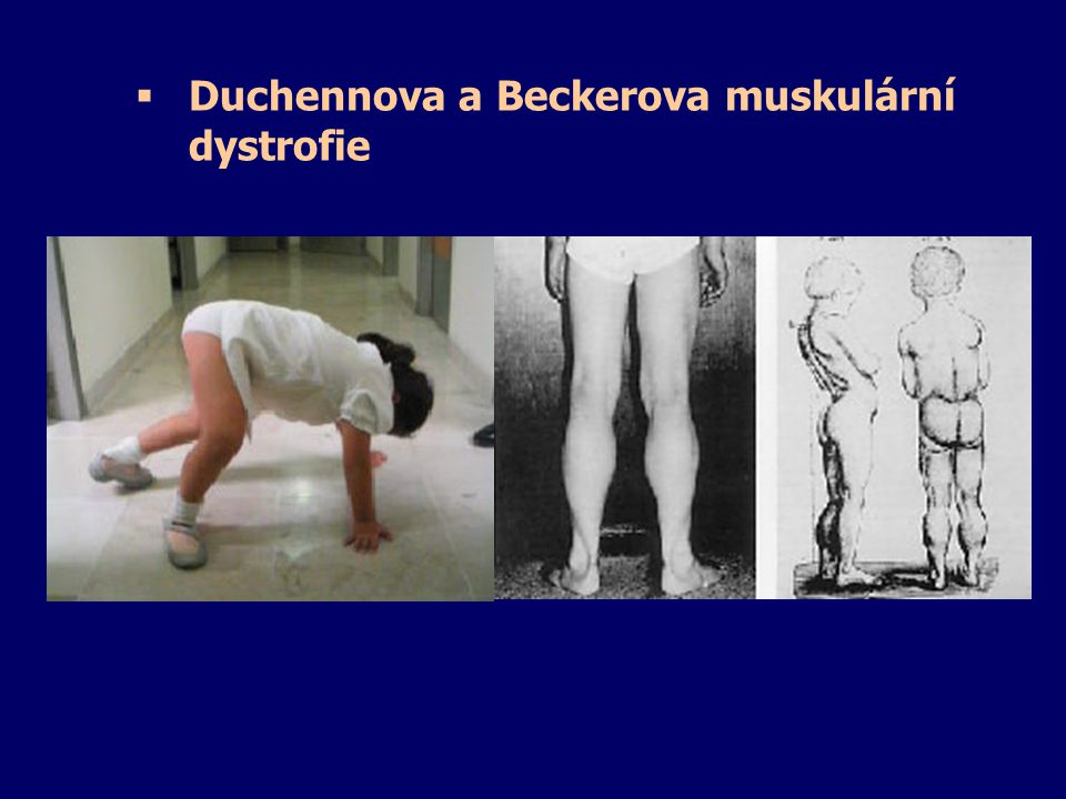 Duchennova a Beckerova muskulární dystrofie