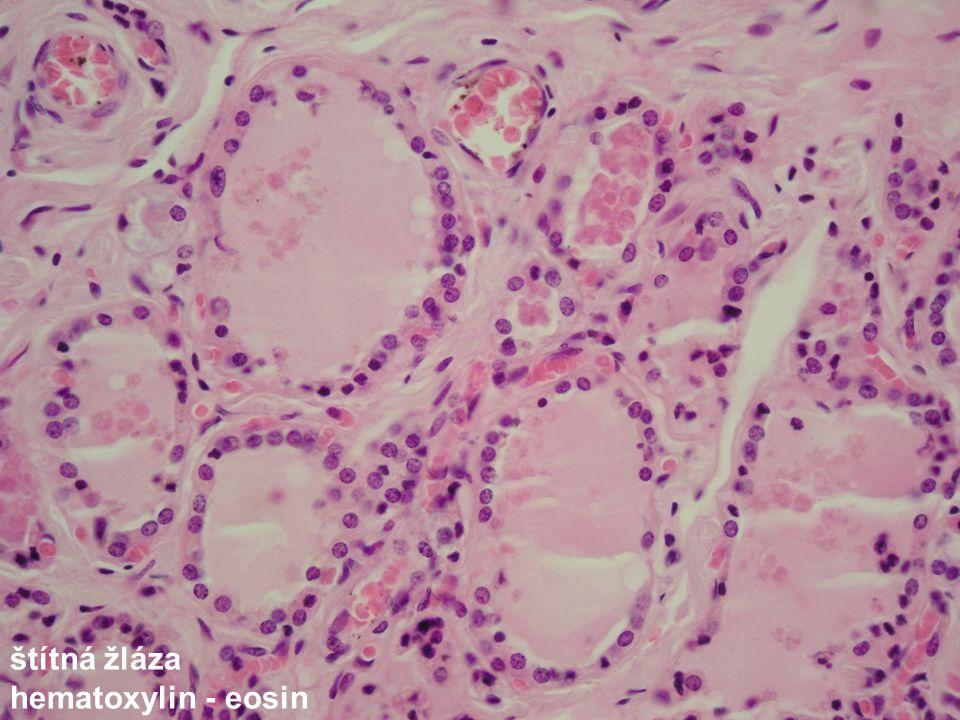 štítná žláza hematoxylin - eosin