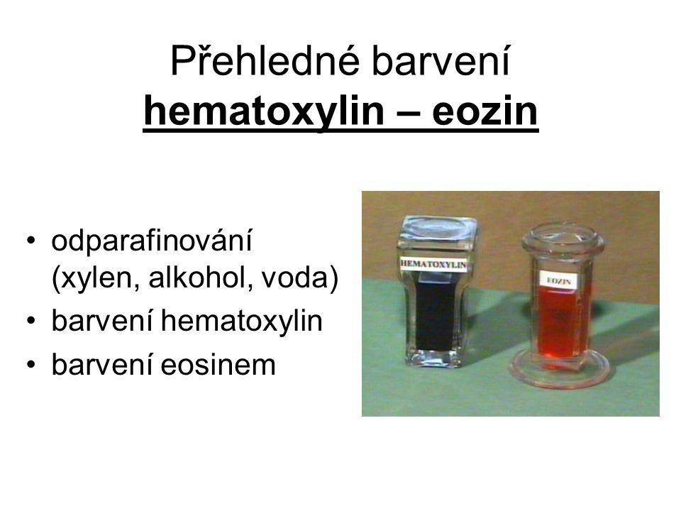 Přehledné barvení hematoxylin – eozin