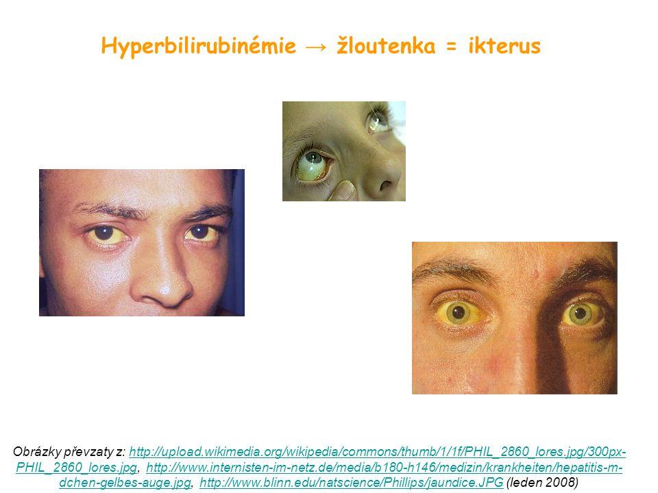 Hyperbilirubinémie → žloutenka = ikterus