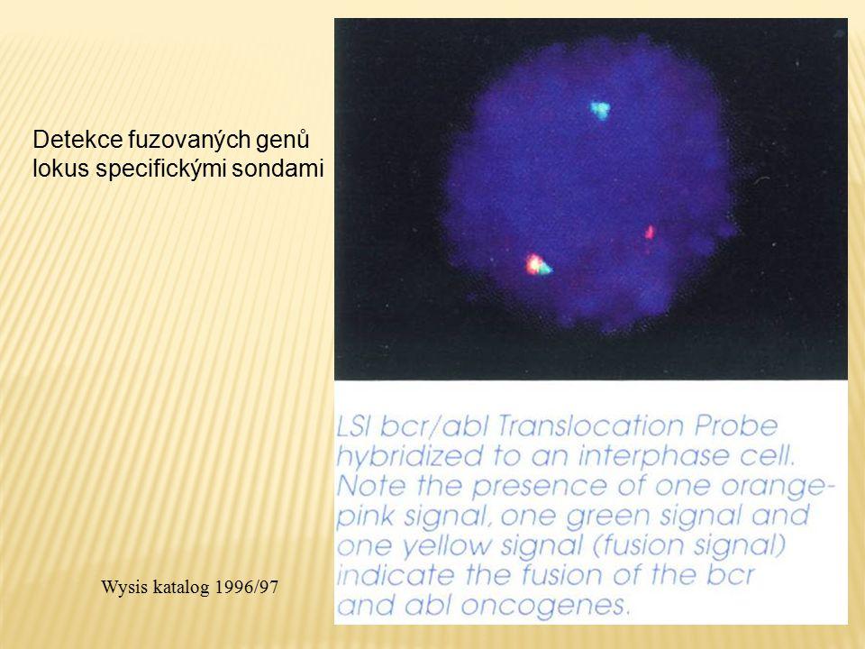 Detekce fuzovaných genů lokus specifickými sondami