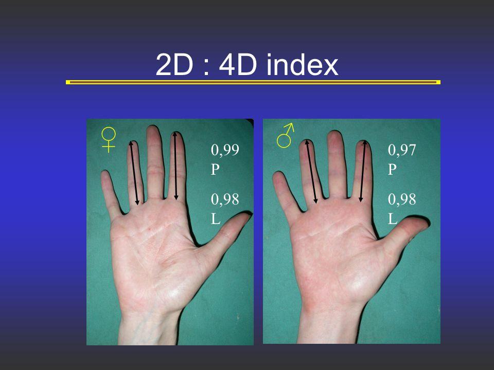 2D : 4D index ♀ ♂ 0,99 P 0,98 L 0,97 P 0,98 L