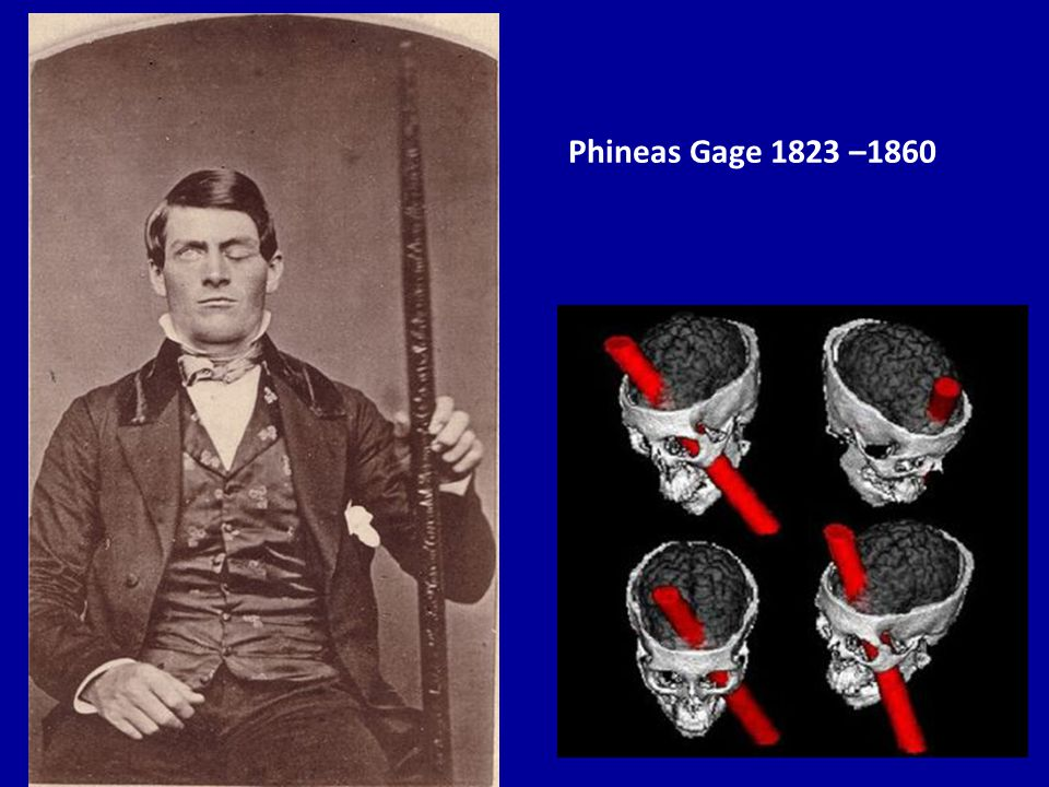 Phineas Gage 1823 –1860