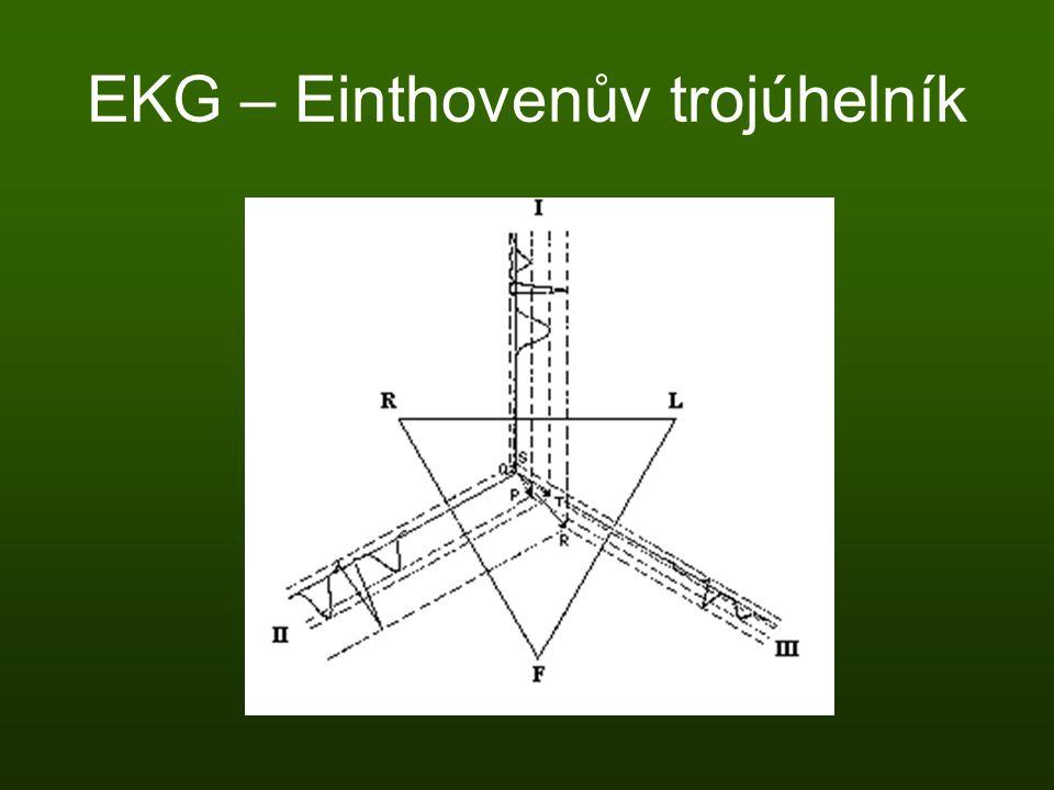 EKG – Einthovenův trojúhelník