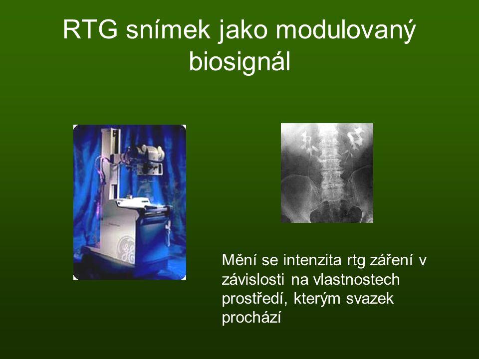 RTG snímek jako modulovaný biosignál