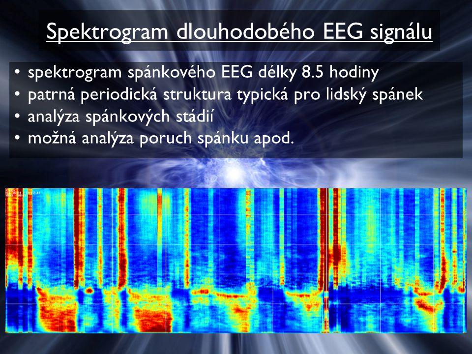 Spektrogram dlouhodobého EEG signálu