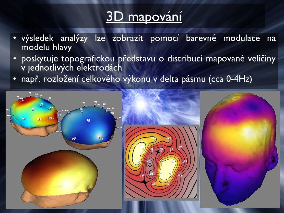 3D mapování výsledek analýzy lze zobrazit pomocí barevné modulace na modelu hlavy.