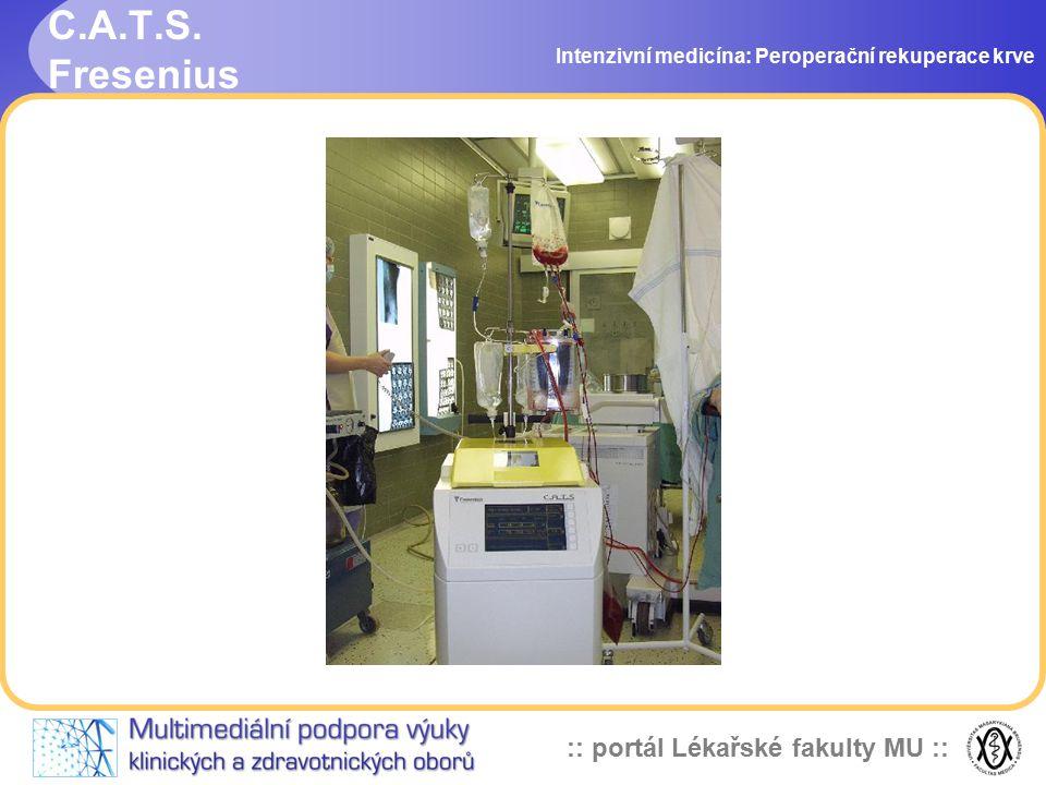 C.A.T.S. Fresenius Intenzivní medicína: Peroperační rekuperace krve