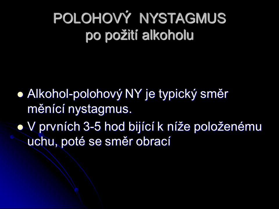 POLOHOVÝ NYSTAGMUS po požití alkoholu