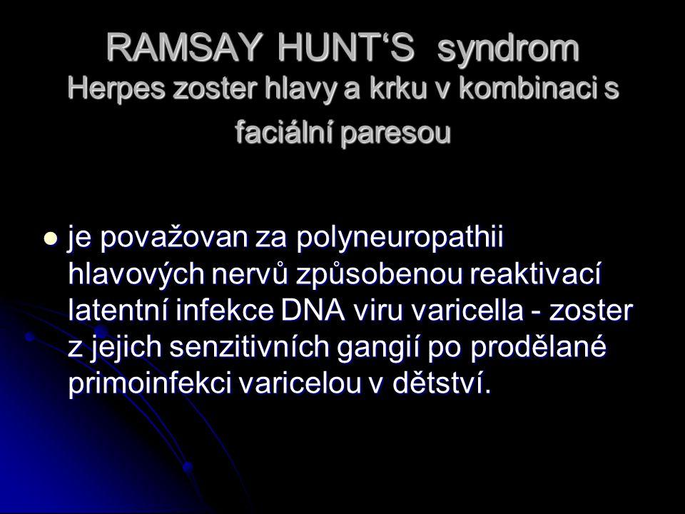 RAMSAY HUNT'S syndrom Herpes zoster hlavy a krku v kombinaci s faciální paresou