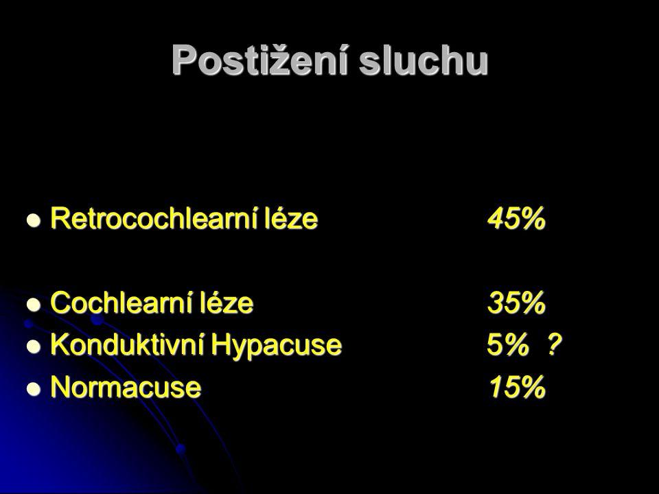 Postižení sluchu Retrocochlearní léze 45% Cochlearní léze 35%