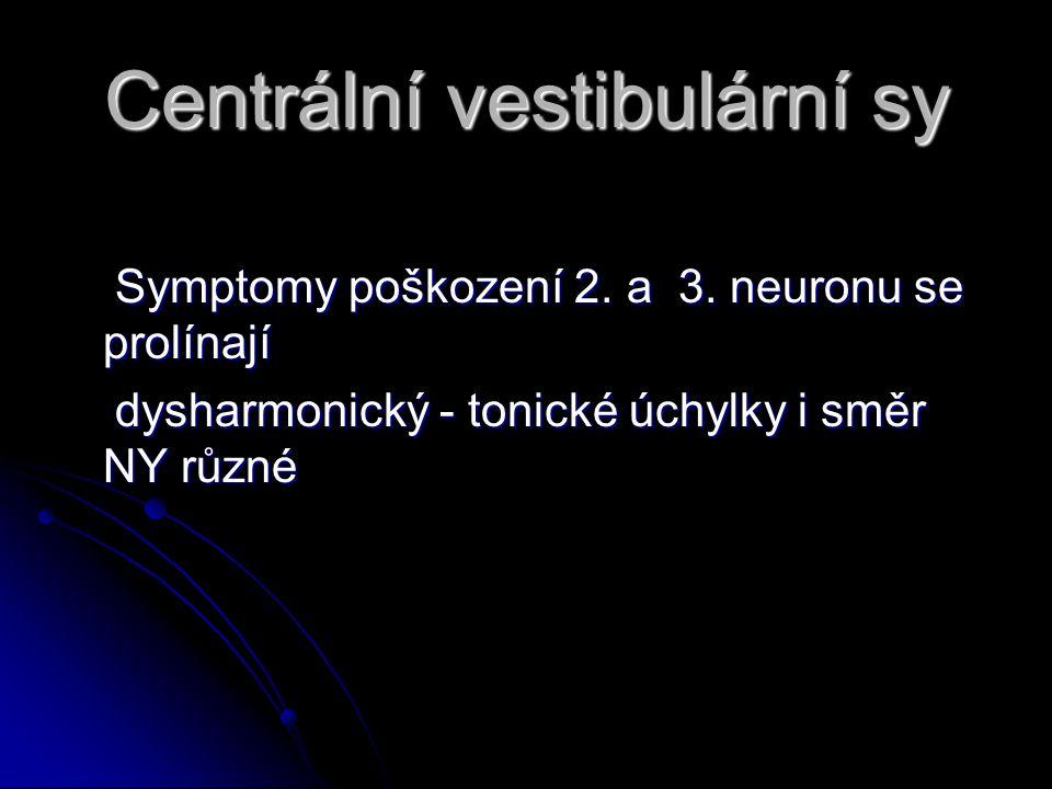 Centrální vestibulární sy