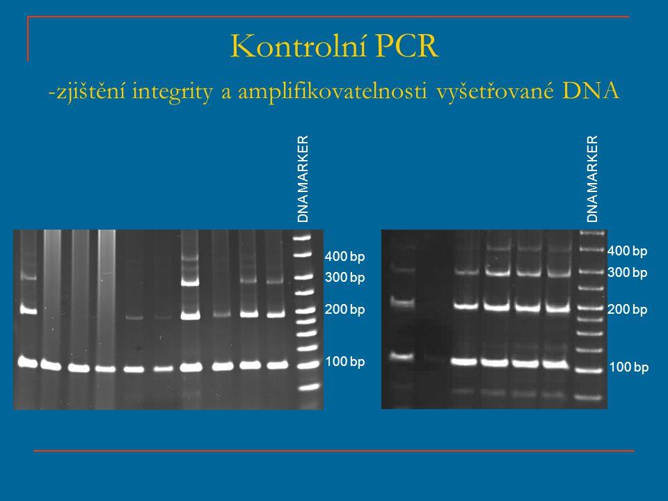 Kontrolní PCR -zjištění integrity a amplifikovatelnosti vyšetřované DNA