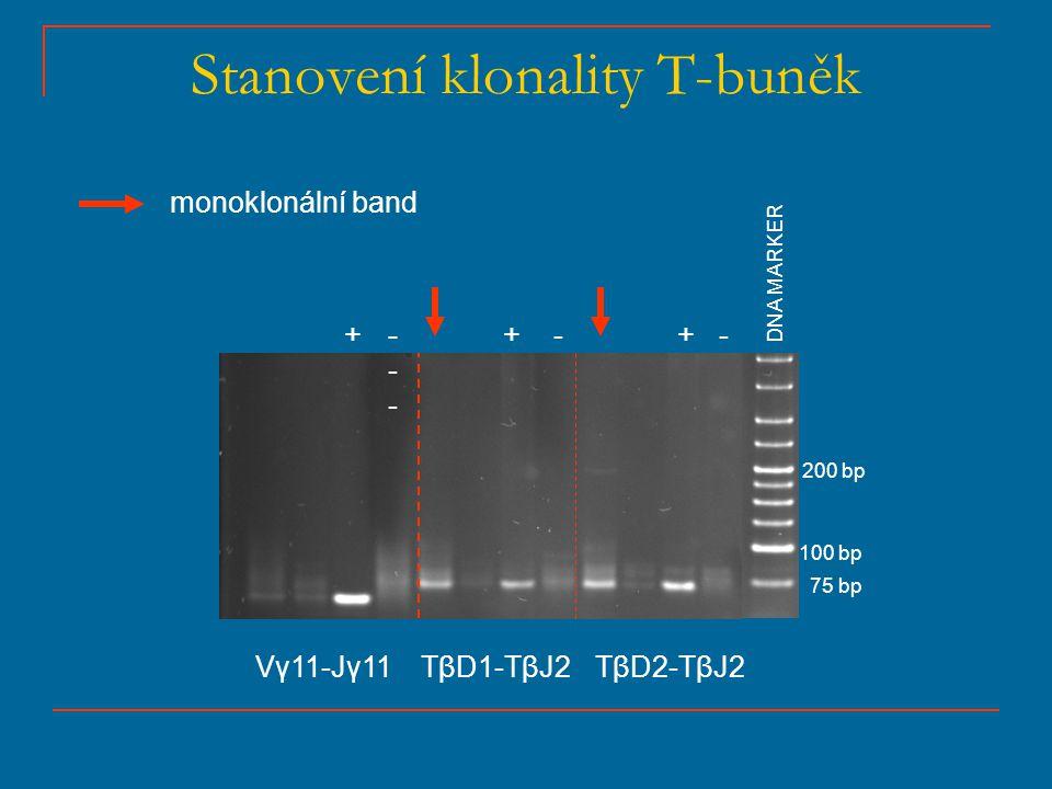 Stanovení klonality T-buněk