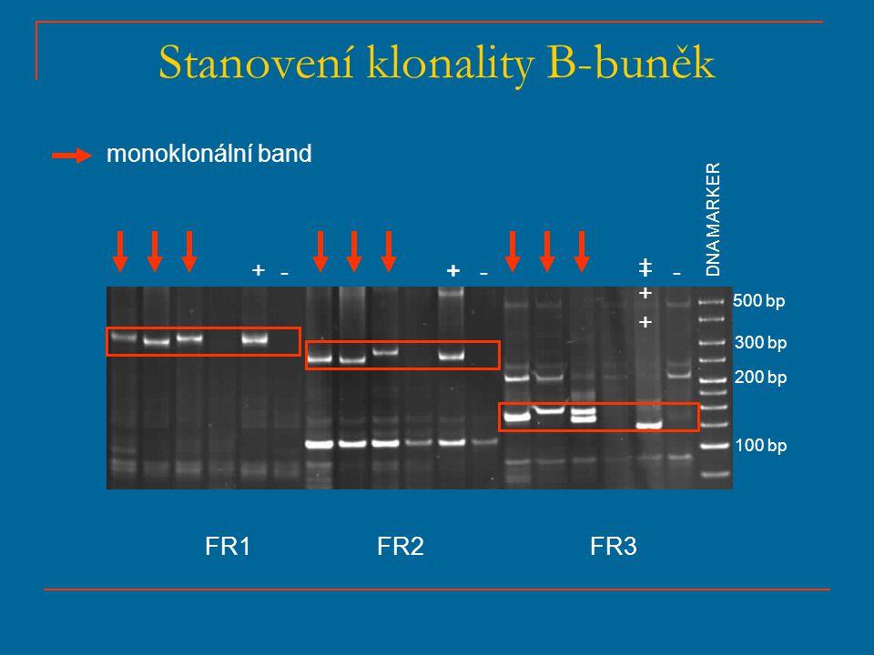 Stanovení klonality B-buněk