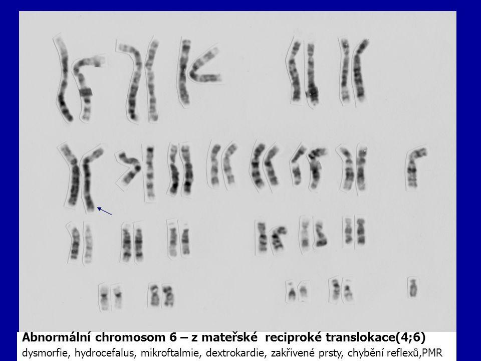 Abnormální chromosom 6 – z mateřské reciproké translokace(4;6)