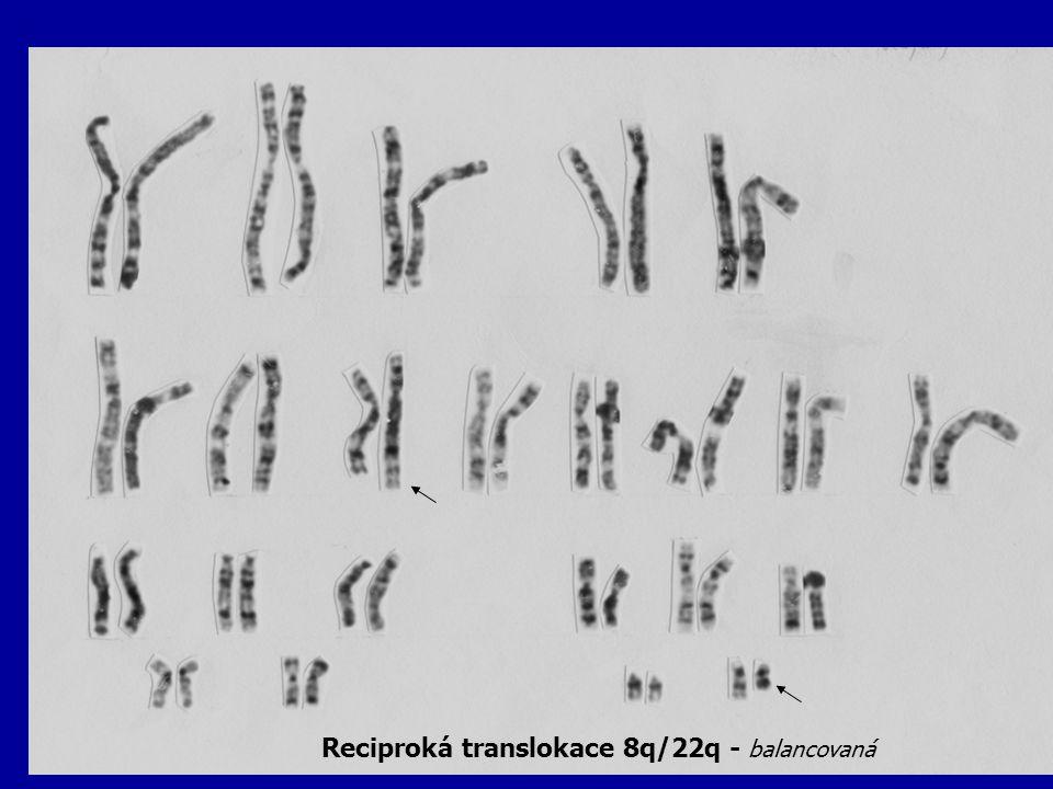 Reciproká translokace 8q/22q - balancovaná