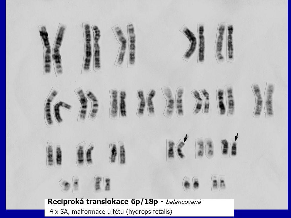 Reciproká translokace 6p/18p - balancovaná